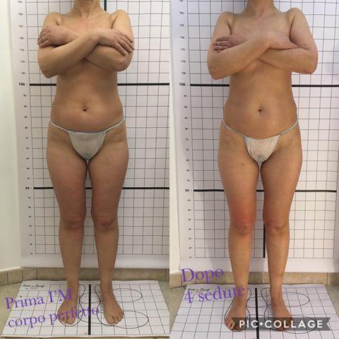 Gianfranca Fancello I'M corpo perfetto maggio-agosto 2019 davanti