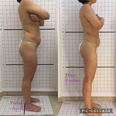 Gianfranca Fancello I'M corpo perfetto maggio-agosto 2019 fianco